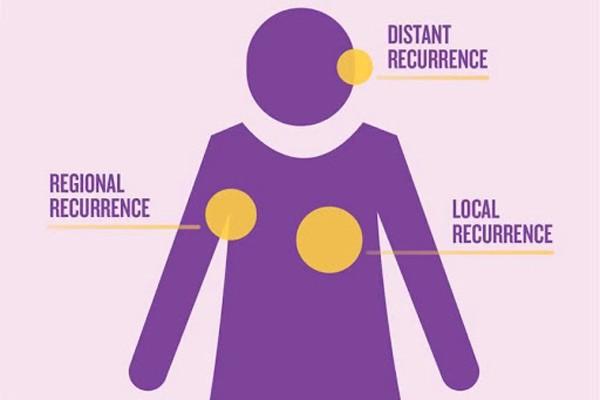 Ung thư vú có thể tái phát tại chỗ, tái phát vùng hay tái phát xa