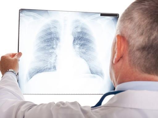 bụi phổi amiang