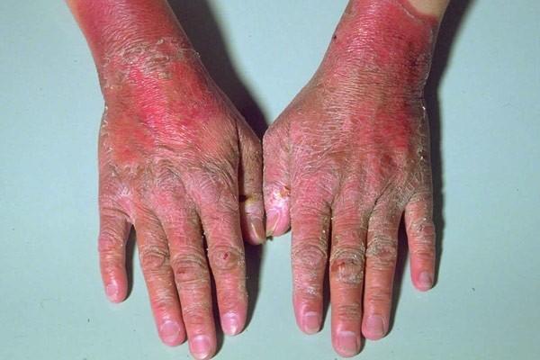 Bệnh Pellagra