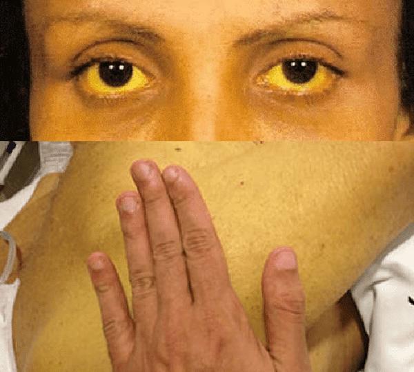 Hình trên: Tròng trắng có màu vàng. Hình dưới: Da vàng