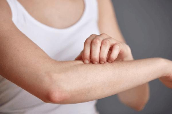 Xơ hóa đường mật ảnh hưởng đến da