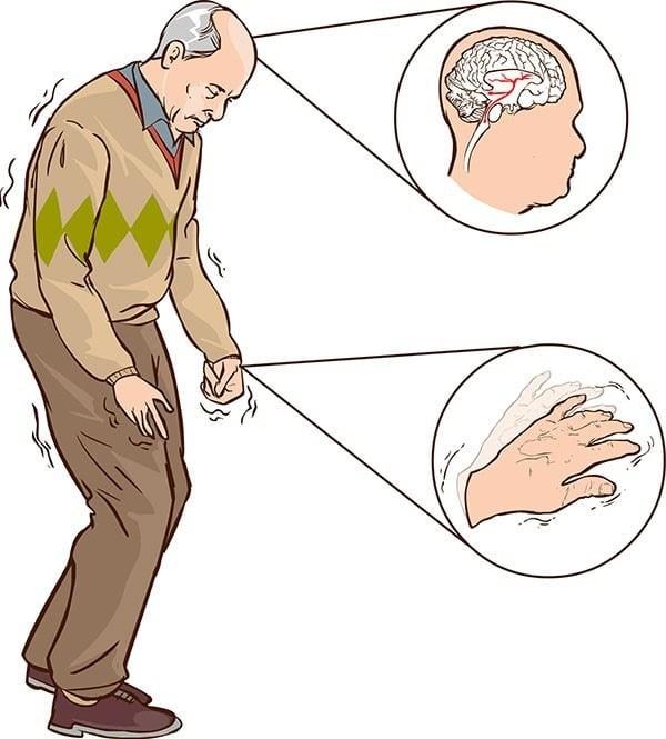 Bệnh Parkinson: Nguyên nhân, triệu chứng, điều trị, phòng ngừa - YouMed