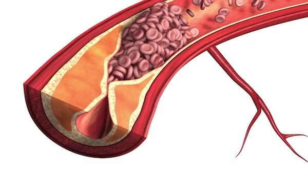 thiếu máu cục bộ đường ruột
