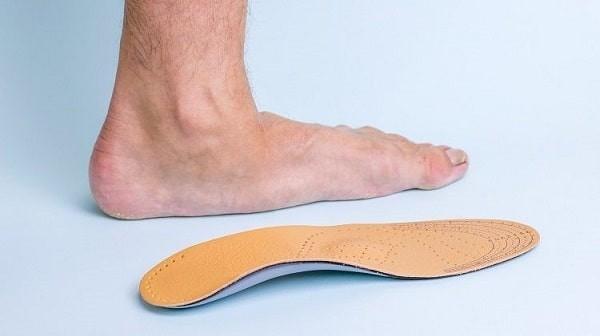 Minh họa bàn chân bẹt