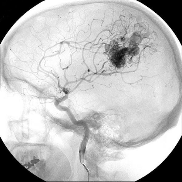 Hình ảnh dị dạng động tĩnh mạch não