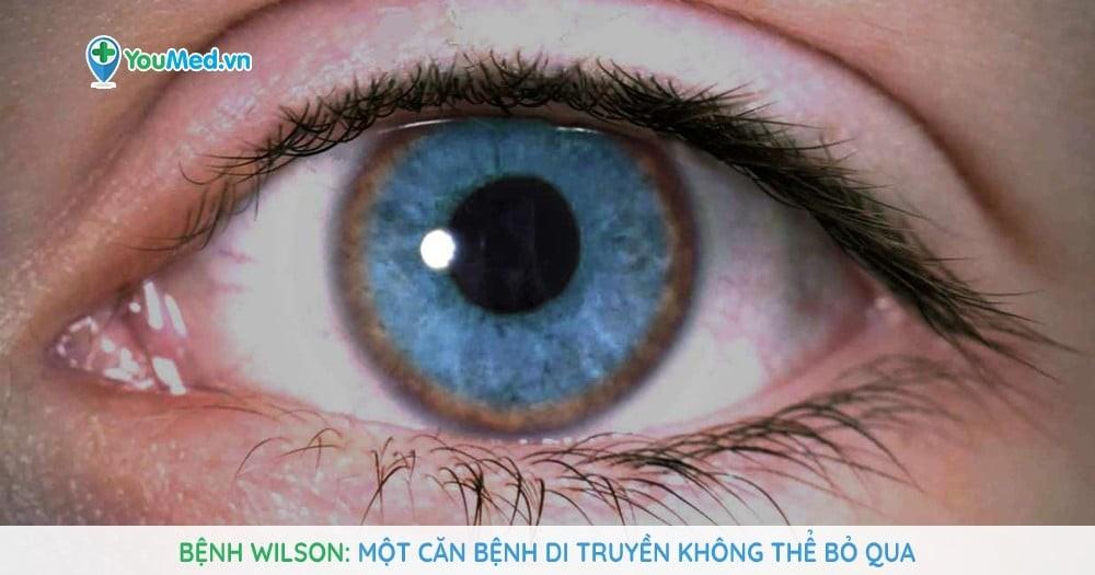 Bệnh Wilson: Một căn bệnh di truyền không thể bỏ qua