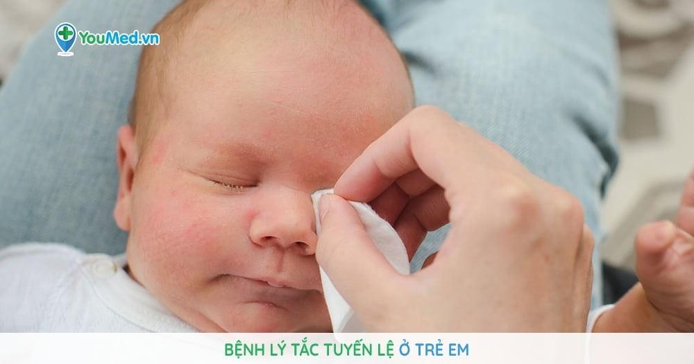 Bệnh lý tắc tuyến lệ ở trẻ em