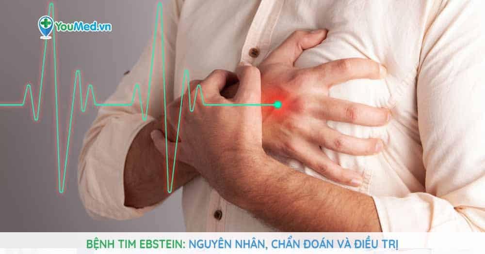 Bệnh tim Ebstein- nguyên nhân, chẩn đoán và điều trị