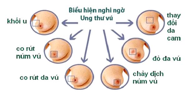 Các dấu hiệu nghi ngờ ung thư vú