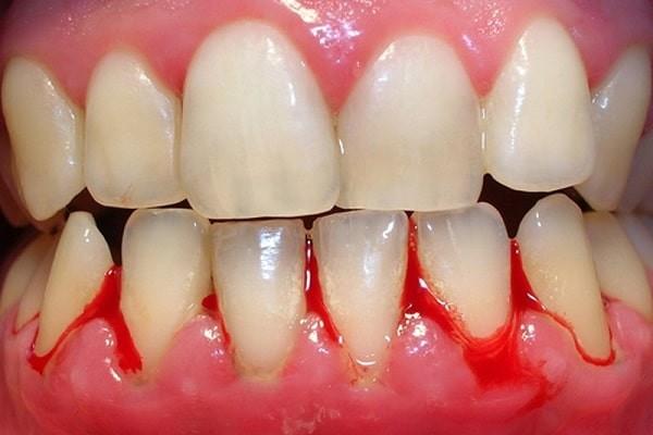 Chảy máu nướu răng
