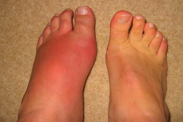 Cơn Gout cấp