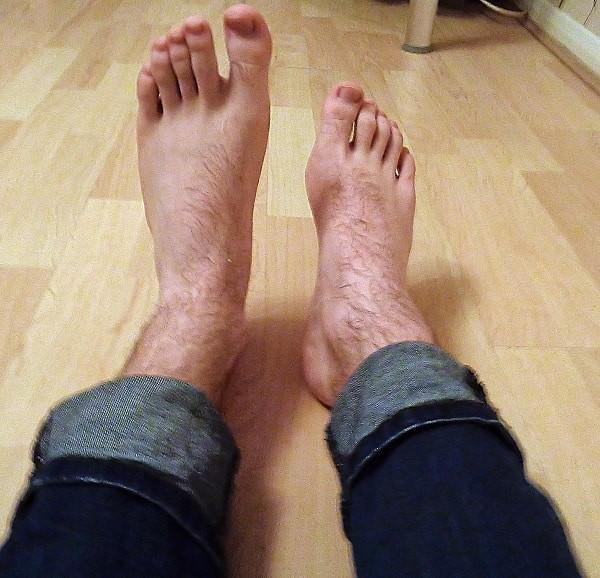 Bàn chân rơi không thể nhấc lên, không gập mu bàn chân lên được