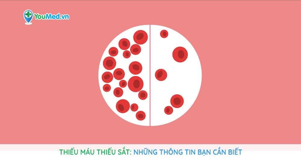 Thiếu máu thiếu sắt: Những thông tin bạn cần biết