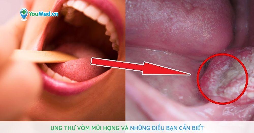 Ung thư vòm mũi họng và những điều bạn cần biết