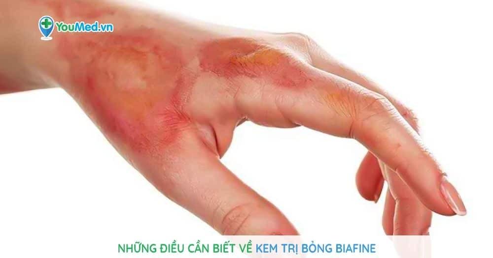 Những điều cần biết về kem trị bỏng Biafine