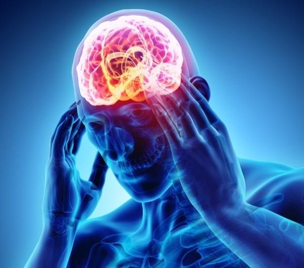 Đau đầu vận động được chia làm hai loại: nguyên phát và thứ phát