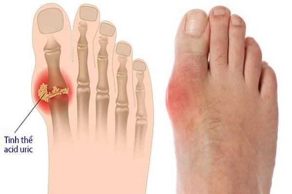 Hình ảnh người mắc bệnh Gout