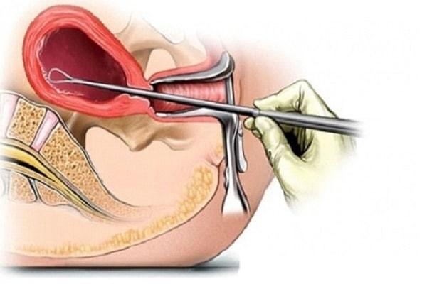 Nhiễm trùng sau khi phá thai