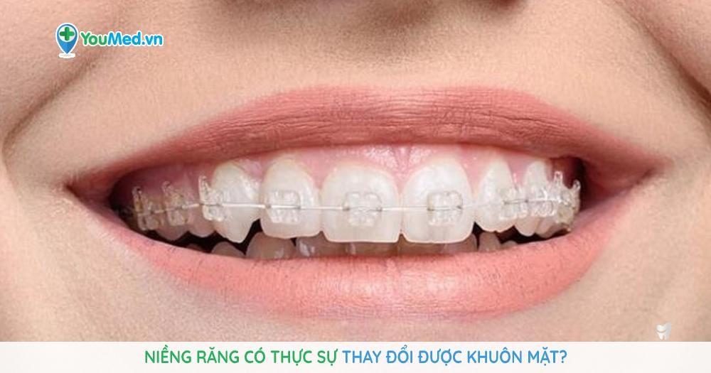 Niềng răng có thực sự thay đổi được khuôn mặt?