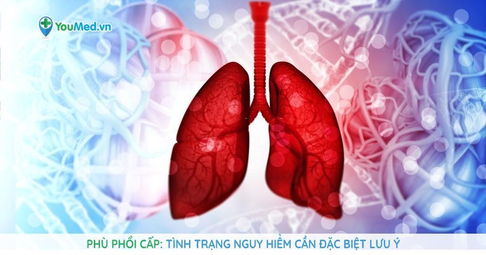 Phù phổi cấp: Tình trạng nguy hiểm cần đặc biệt lưu ý
