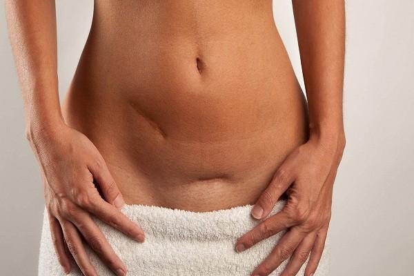 Phục hồi sức khỏe sau sinh mổ - sinh mổ bao lâu thì quan hệ được
