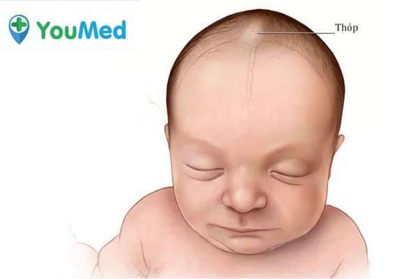 Thóp trẻ có chức năng bảo vệ bộ não