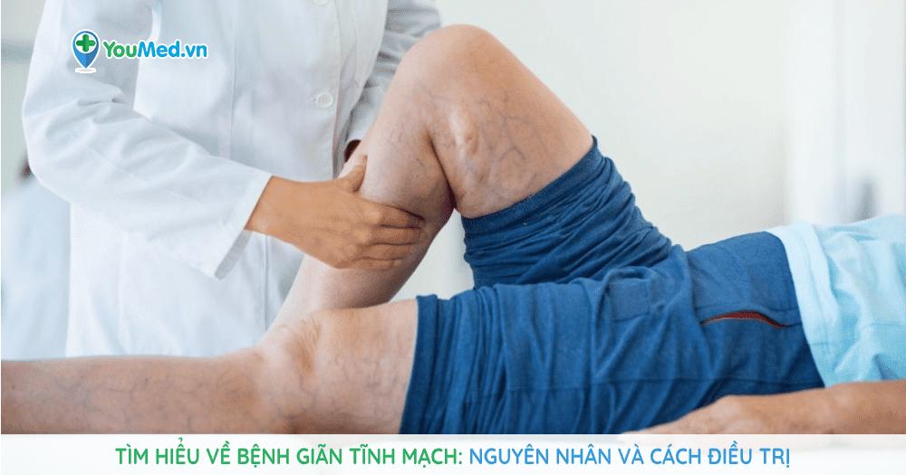 Tìm hiểu về bệnh giãn tĩnh mạch, nguyên nhân và cách điều trị