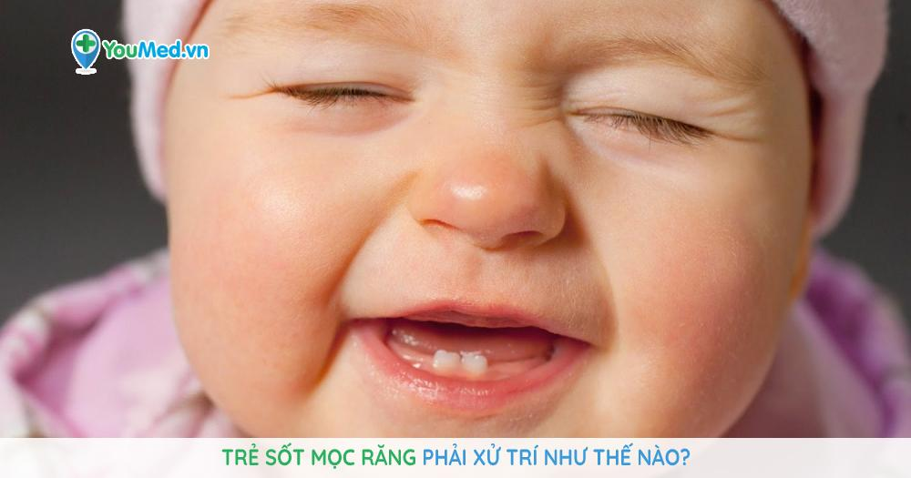 Trẻ sốt mọc răng phải xử trí như thế nào