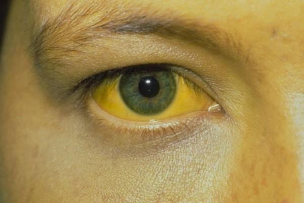 Vàng da niêm nên làm xét nghiệm Albumin máu
