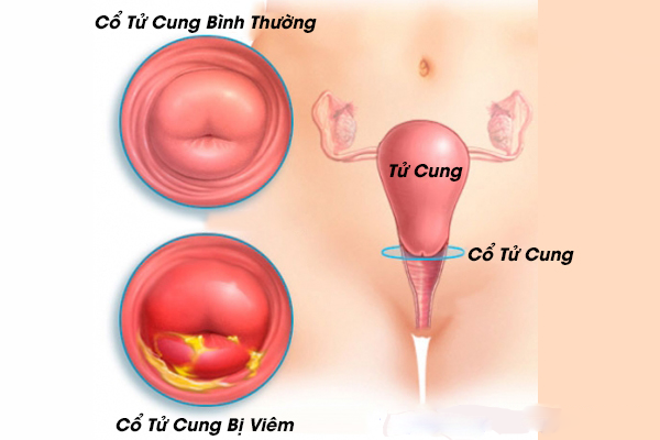 Viêm cổ tử cung là biến chứng rất thường gặp