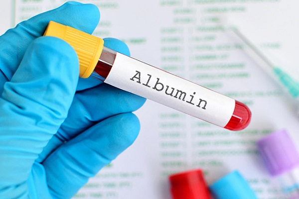 Xét nghiệm nồng độ Albumin trong máu