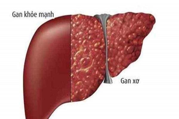 Xơ gan làm giảm Albumin máu