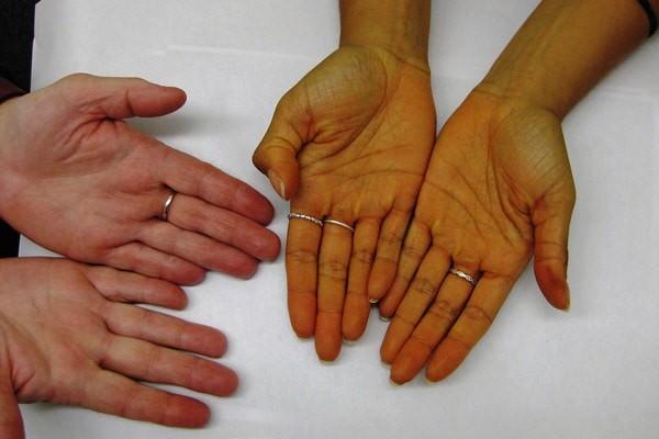Triệu chứng vàng da có thể xuất hiện trong bệnh Wilson hoặc nhiều bênh lý khác nữa