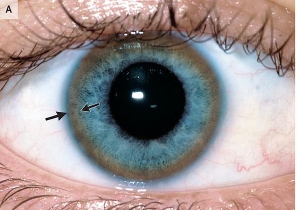 Vòng Kayser-Fleischer là sự đổi màu vàng nâu bất thường trong mắt (mũi tên chỉ)