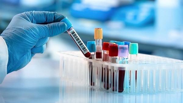 Xét nghiệm máu góp phần chẩn đoán hội chứng buồng trứng đa nang và các biến chứng của nó
