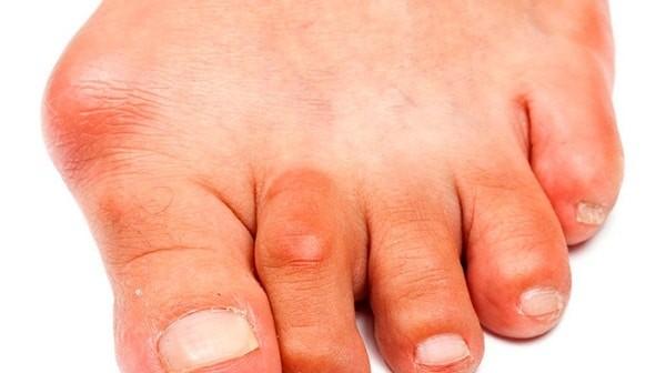 Minh họa tình trạng gout ở ngón cái