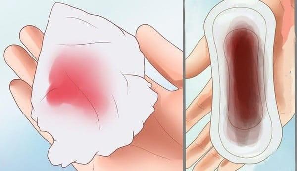 Đừng chủ quan nếu thấy máu âm đạo chảy bất thường