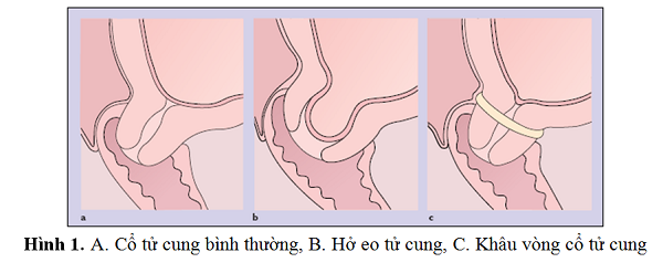 Hở eo tử cung