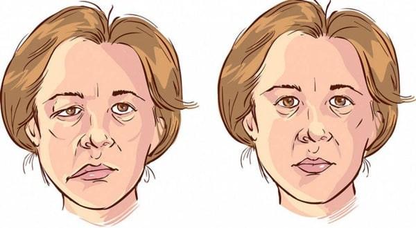 Cơ mặt bị ảnh hưởng do các dây thần kinh bị tổn thương