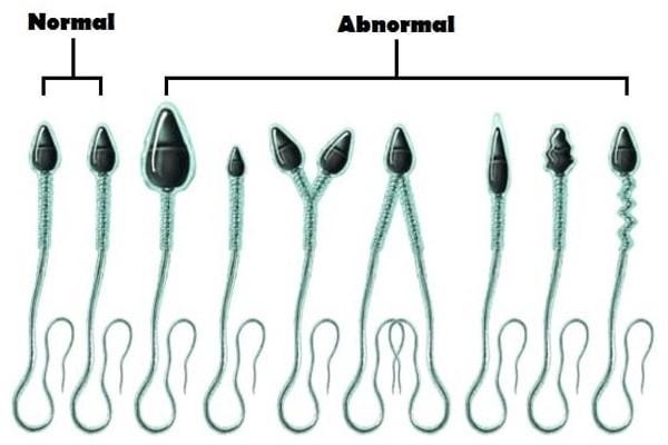 Tinh trùng khỏe mạnh và tinh trùng bất thường