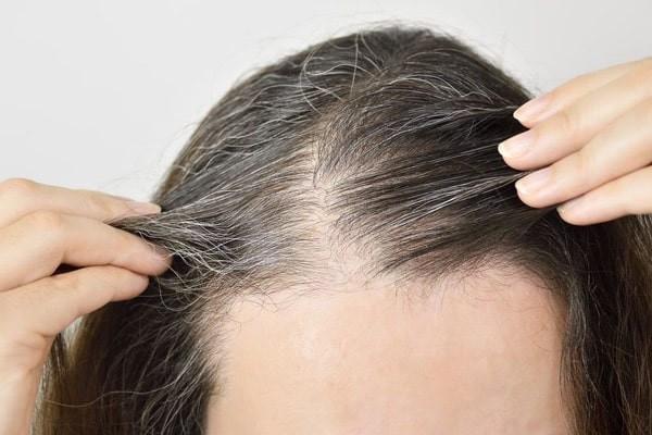 Phối hợp dược liệu với các vị thuốc khác để chữa tóc bạc sớm