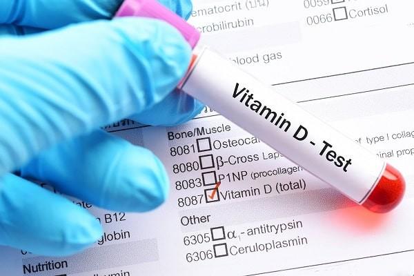 Kiểm tra lượng vitamin D thông qua nồng độ 25(OH)D trong huyết thanh