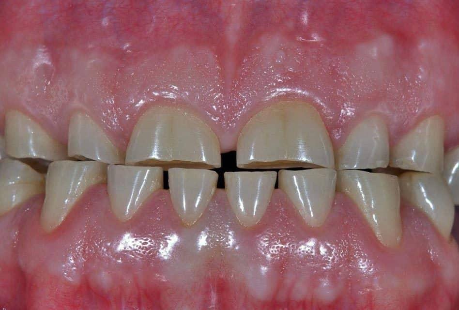 mòn răng do cọ mòn