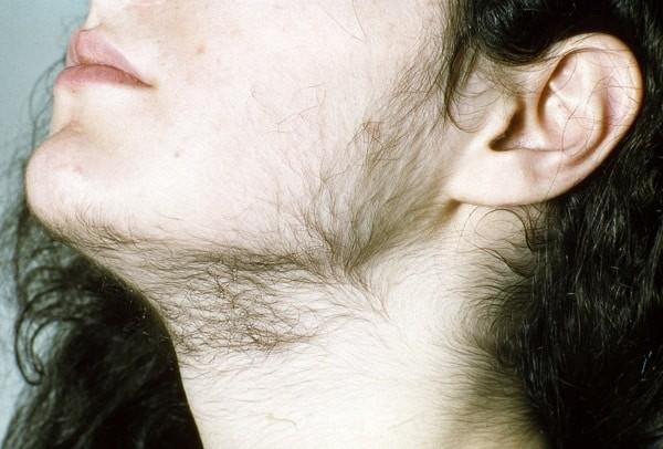 hiện tượng lông mọc rậm