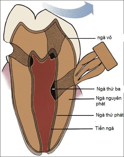 cấu trúc ngà răng