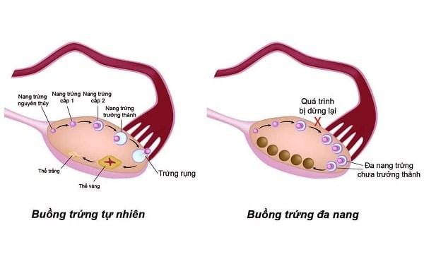 Sự rụng trứng ở buồng trứng bình thường và buồng trứng đa nang