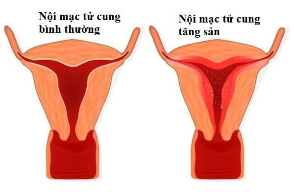 tăng sản nội mạc tử cung