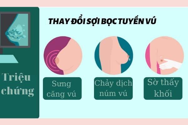 Một số triệu chứng của thay đổi sợi bọc tuyến vú