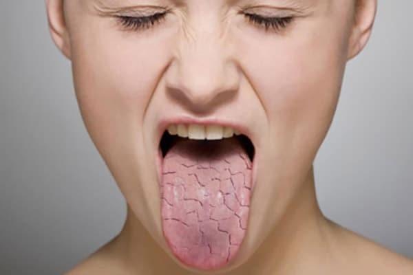 Kết hợp với một số dược liệu khác có thể trị khô miệng