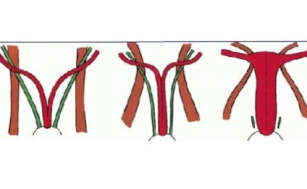 Tử cung đôi xảy ra khi hai ống Muller (màu đỏ) không hoà hợp thành một tử cung